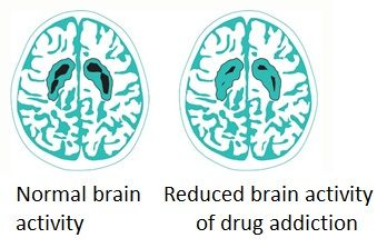 Harmful Substance Use and the Brain